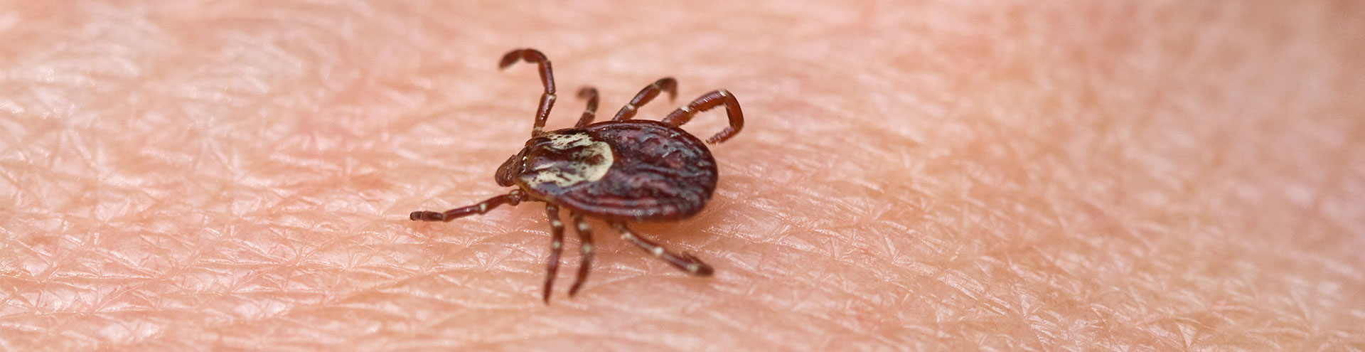 A flat brown tick crawling along a persons skin, used to identify the pest.